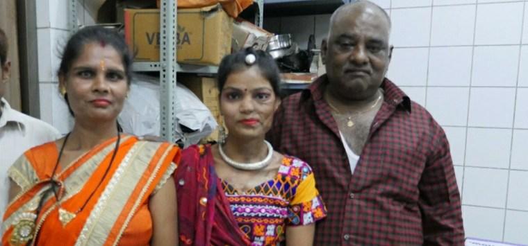 Acid Attack Survivor Kunti