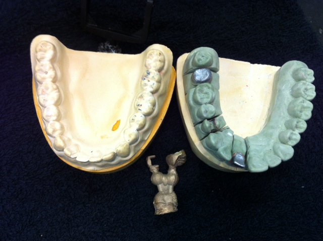 Fixed Prosthodontics The Metal Inlay And The Metal Crown