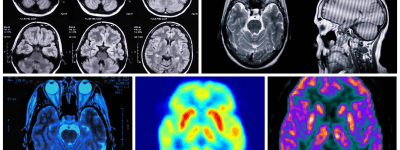 Clinical radiology uses radiopharmaceuticals, x-rays and computed tomography CT to Obtain radiography images