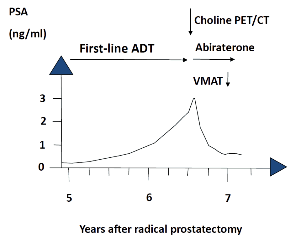Figure 1. The PSA level increased before the start of treatment with abiraterone and declined after treatment. VMAT denotes volumetric modulated arc therapy.