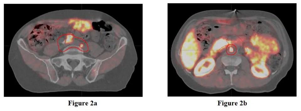 Figure 2. The caudal gross tumor volume (Figure 2a), and cranial gross tumor volume and the planned treatment volume boost, (Figure 2b).