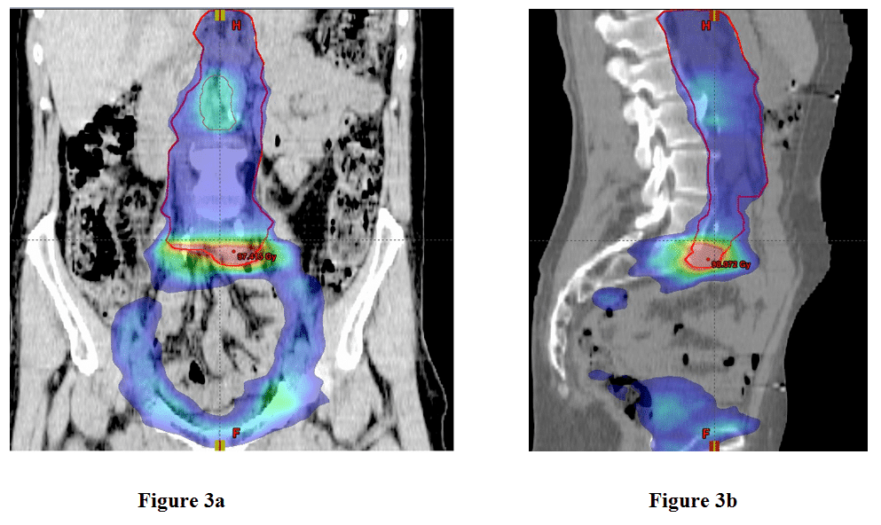 Figure 3 shows the coronal and sagittal dose distribution for the lymph nodes for the total VMAT treatments for prostate cancer