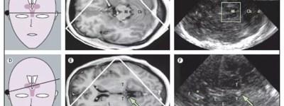 Ultrasonography, Ultrasound