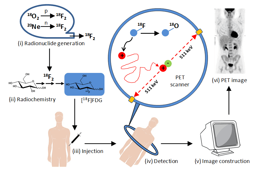 Figure 2 shows the stages in PET imaging of the human body