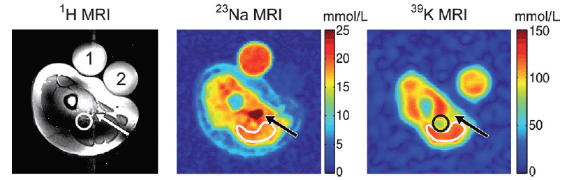 Figure 17 shows the potassium-39 MRI analysis of human muscle