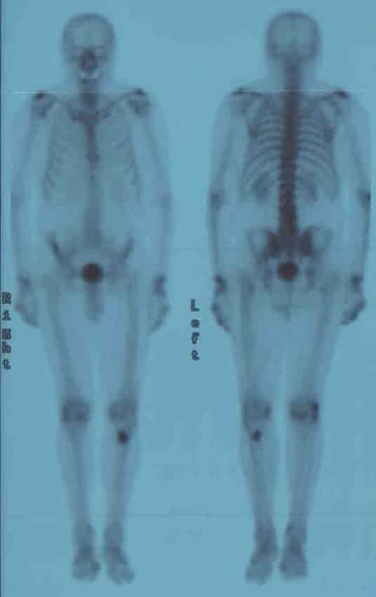 Figure 1. Anterior (right) and posterior (left) view of whole body bone scintigraphy. Increased 99mTc-methylenediphoshonate activity is observed in the proximal diaphysis of the left tibia.