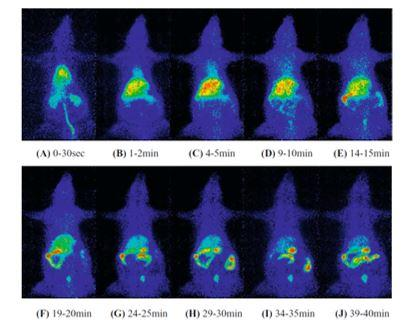 Figure 9. Whole-body imaging of 11C-labelled 5,5-diphenylhydantoin (DPH) injected into tail vein of rat using planar positron imaging.