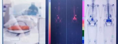 Whole Body Positron Emission Tomography Scan