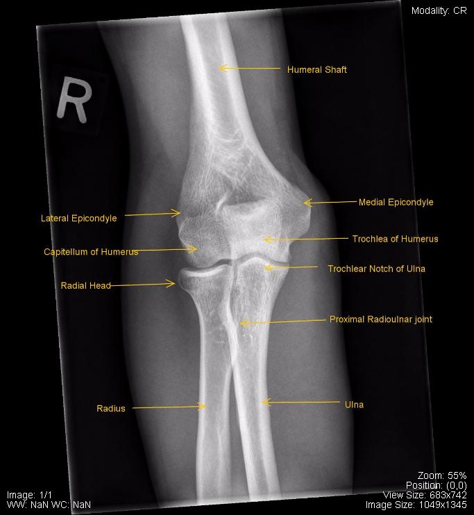 Musculoskeletal - Undergraduate Diagnostic Imaging ...