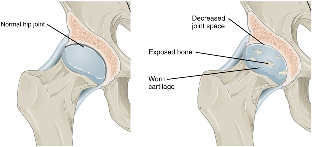medium resolution of the top panel in this figure shows a normal hip joint and the bottom panel
