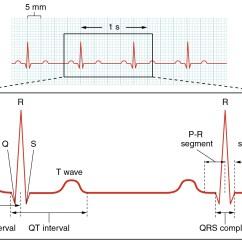 Standard Ekg Diagram Detailed Skeleton 19 2 Cardiac Muscle And Electrical Activity  Anatomy