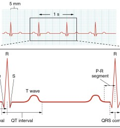 this figure shows a graph of millivolts over time and the heart cycles during an ecg [ 1658 x 1086 Pixel ]