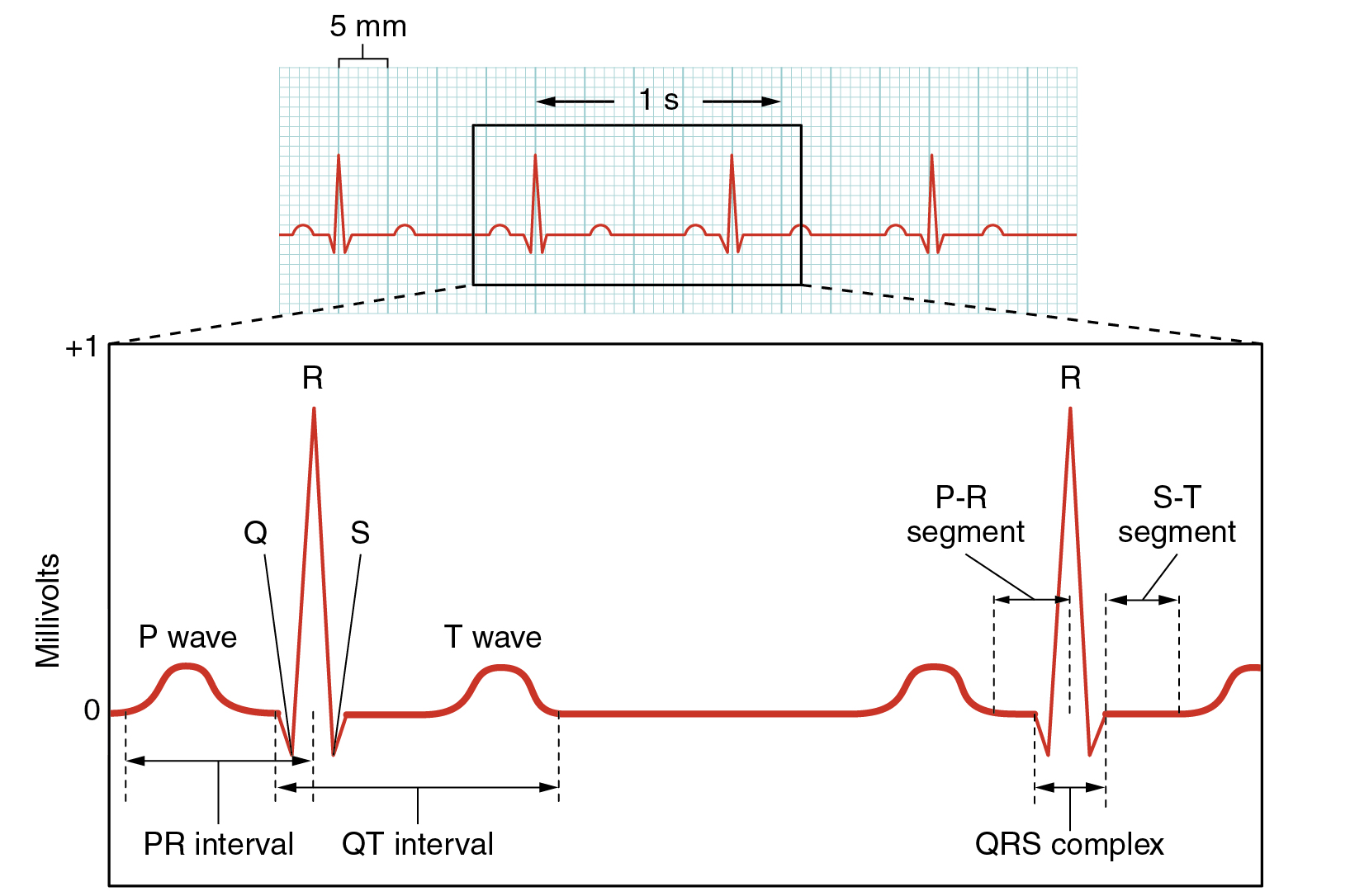 hight resolution of this figure shows a graph of millivolts over time and the heart cycles during an ecg