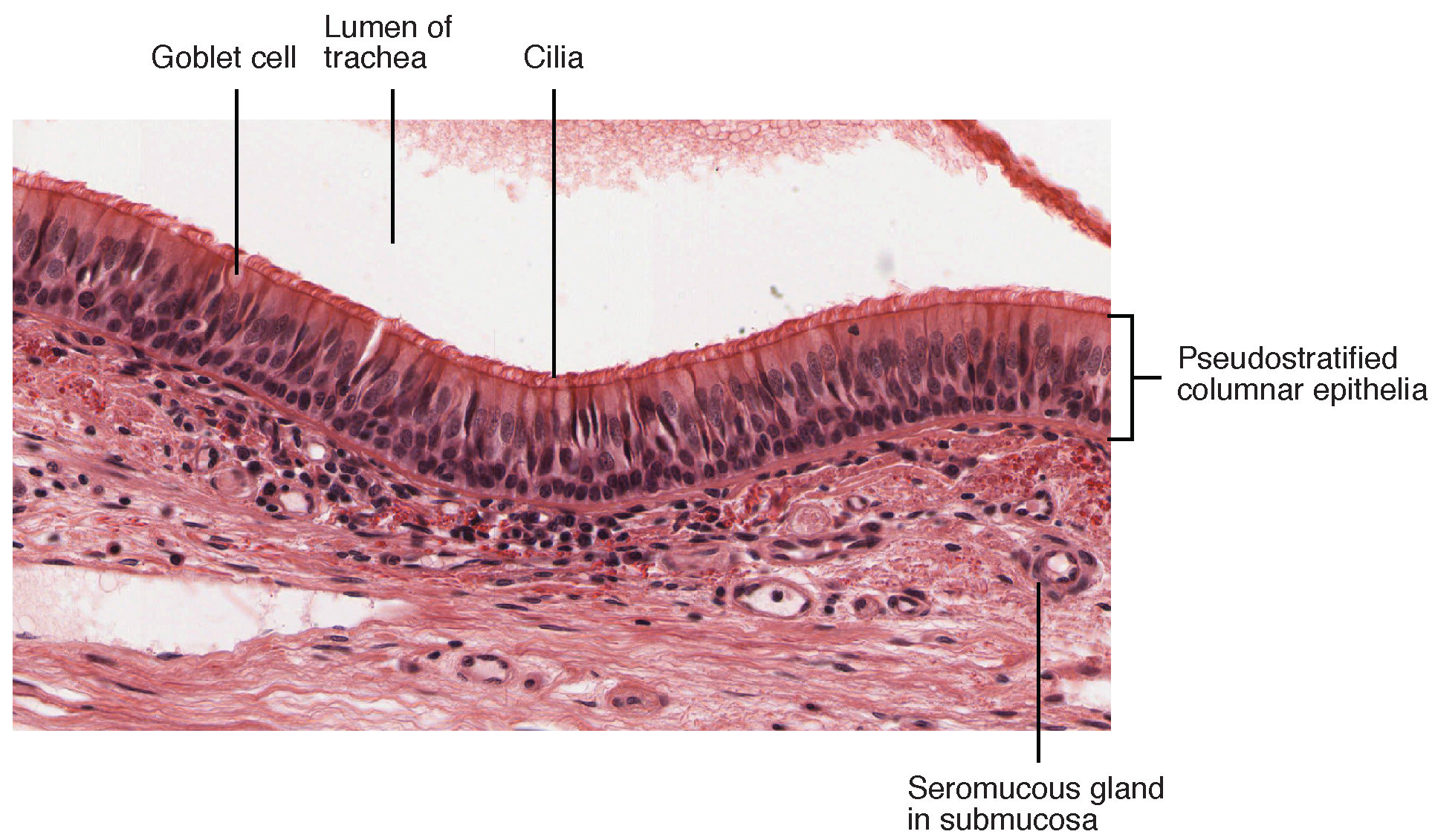 hight resolution of this figure shows a micrograph of pseudostratified epithelium