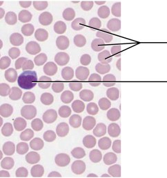 this micrograph of a blood smear shows a group of red blood cells and a single [ 1439 x 760 Pixel ]