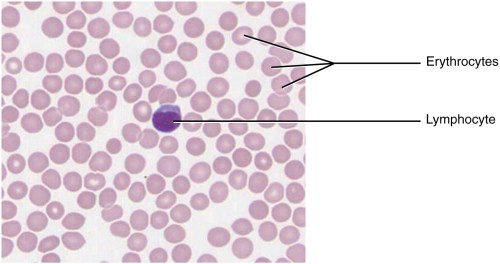 small resolution of this micrograph of a blood smear shows a group of red blood cells and a single