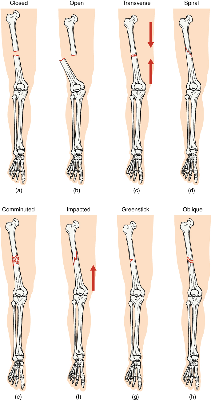 hight resolution of in this illustration each type of fracture is shown on the right femur from an