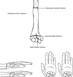 the top panel of this figure shows the different types of fracture in the humerus  [ 836 x 1174 Pixel ]