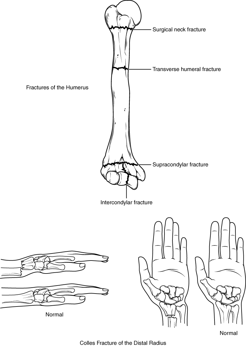hight resolution of the top panel of this figure shows the different types of fracture in the humerus