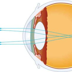 Lenses For Ray Diagram Physics Wiring Capacitor Start Motor Of The Eye College In Picture Shows Internal Structure An And A Tree That