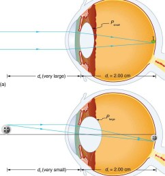 two cross sectional views of eye anatomy are shown in part a of the [ 889 x 1000 Pixel ]