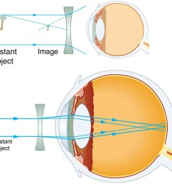 two illustrations of cross sectional view of an eye are shown in the first [ 1000 x 977 Pixel ]