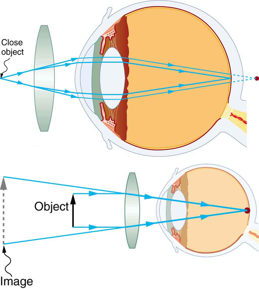 medium resolution of two illustrations of a cross sectional view of an eye are shown in the