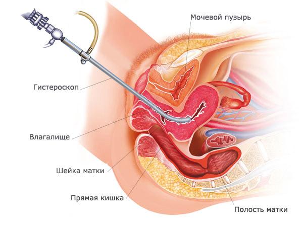 Инструменты для выскабливания полости матки