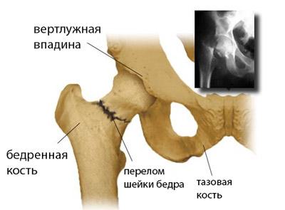 articulații din genunchi de titan Preț