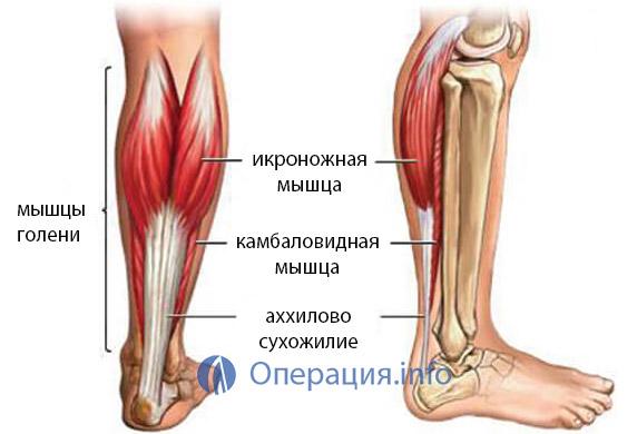 Растяжение ахиллова сухожилия: симптомы, упражнения, лечение