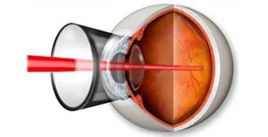 Можно ли восстановить сетчатку глаза