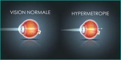 Traitement de l'hypermétropie au laser Ophtalmologie var