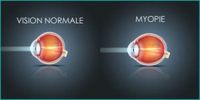 myopie correction laser