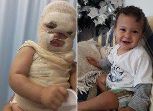bebê-1-300x218 Bebê tem rosto desfigurado por água fervendo