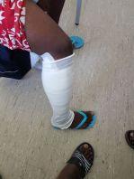 Ellwangen Verletzung