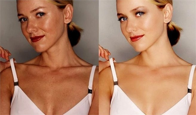 Where did Naomi Watts's beauty marks go?