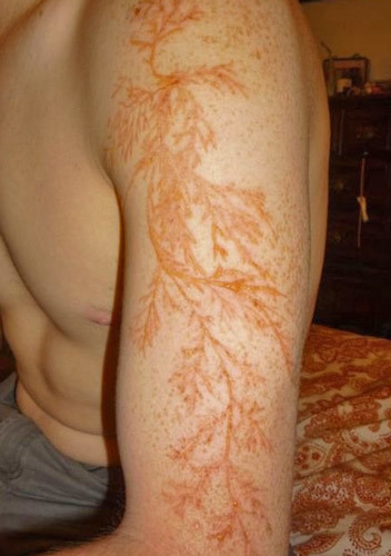 "Being hit by lightning causes weird (and strangely beautiful) skin designs called ""Lichtenberg figures."""