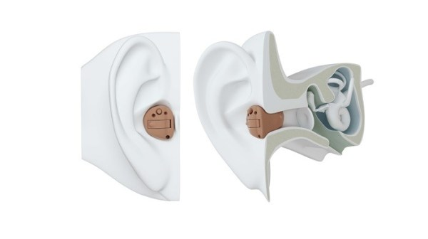 ITC hearing aid by Optical Palace