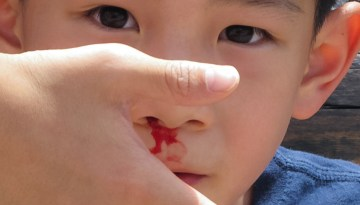 How to Stop a Nosebleed at Home: 12 Nose Bleeding Treatments
