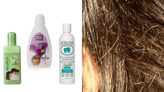Best Lice Treatment Shampoos in india. Hair Care ...