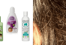 Best Lice Treatment Shampoos in india