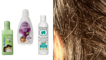 Natural and Best Lice Treatment Shampoos Available in India