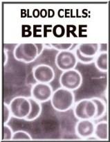Blood Cels Before Detox