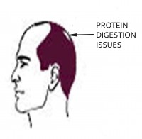 Male Pattern Baldness: Protein Digestion