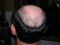Hair Loss: