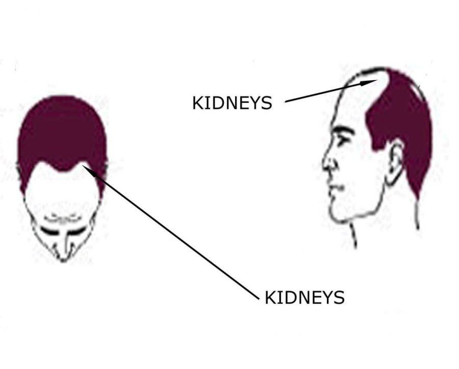 Male Pattern Baldness: Kidneys Issues