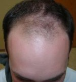 Male Pattern Baldness: Lungs