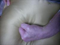 Paralyzed Hand