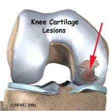 Joint damage - isteoarthritis