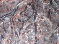 placenta_sacco_amniotico-small.jpg